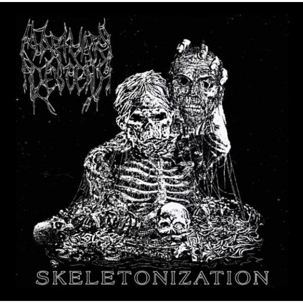 Mortuary descent - Skeletonization  MCD